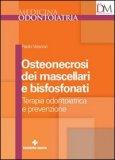 Osteonecrosi dei Mascellari e Bisfosfonati
