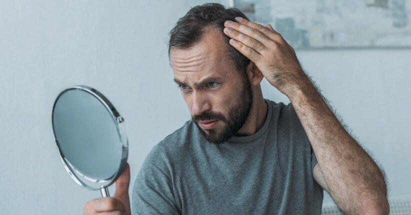 Come bloccare la caduta dei capelli uomo