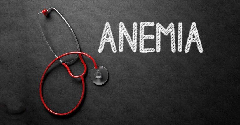 Anemia: come migliorare l'assorbimento del ferro attraverso l'alimentazione