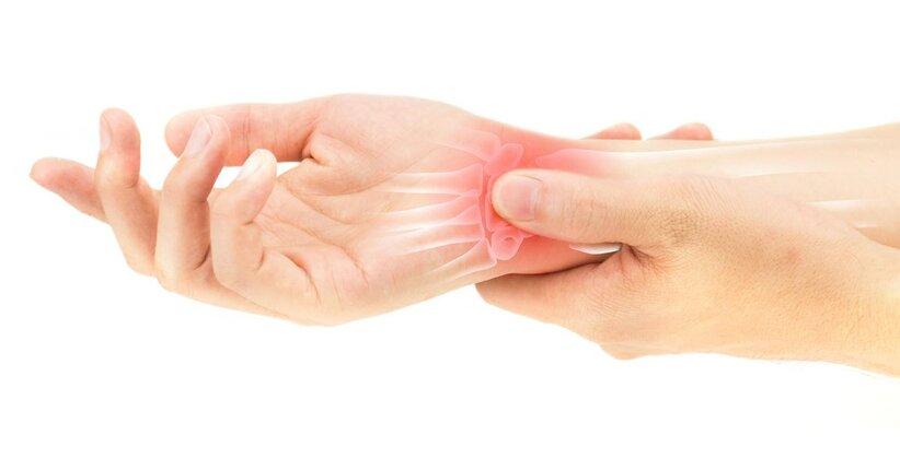 Artrite: rimedi naturali