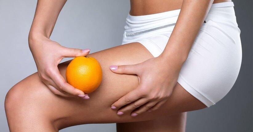 Cellulite: i rimedi naturali per liberarsene
