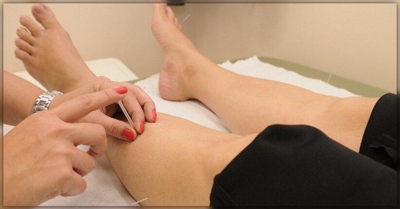 Conosci l'agopuntura?