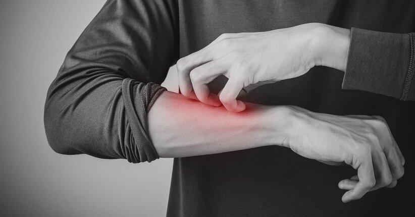 Dermatite: gli oligoelementi e i gemmoderivati più indicati per sconfiggerla