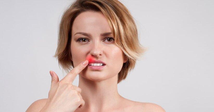 Herpes labiale: 7 rimedi naturali