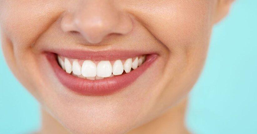 Igiene dei denti e del cavo orale: 6 rimedi naturali