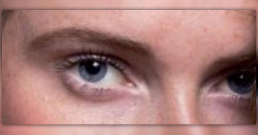 Iridologia: occhi che parlano