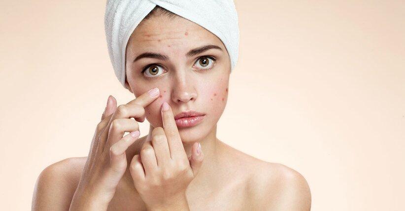 pelle acne