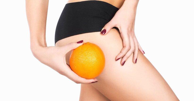 Cellulite sulle cosce: le cause e come eliminarla