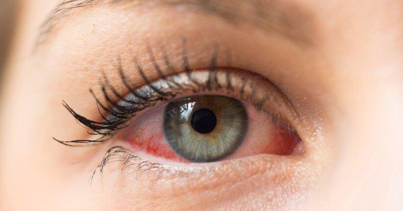 cibo per infezione agli occhi