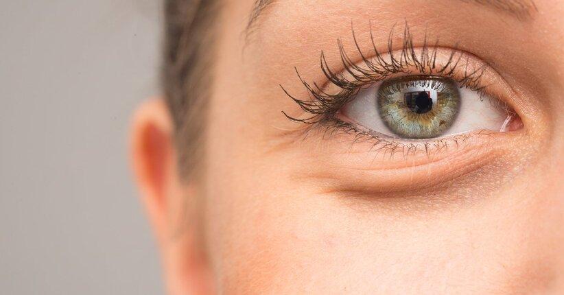 Rughe, borse e occhiaie: come eliminarle?