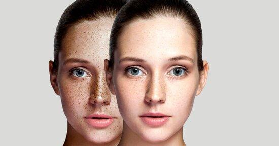 Macchie della pelle: come eliminare e prevenire le discromie cutanee