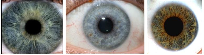 Anello dello stomaco in ipo iridolohia