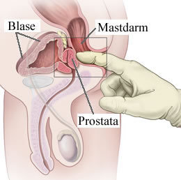 migliore usura degli attrezzi della prostata